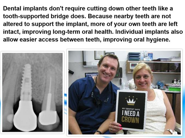 Best Dental Implant Dentist Friendswood Texas