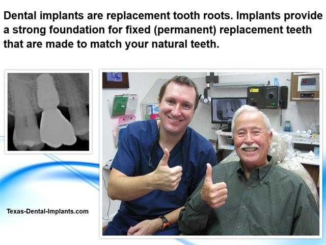 Teeth Implant Pasadena Texas