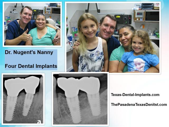 Dental Implants by Dr. Michael Nugent