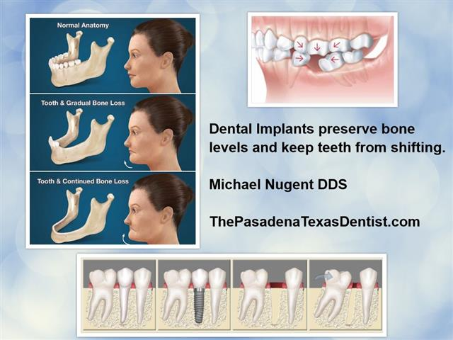 Teeth Implants Deer Park Texas