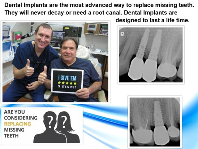 Friendswood Texas Dental Implants