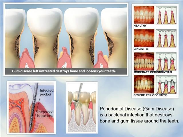 Teeth Cleaning Pasadena Texas