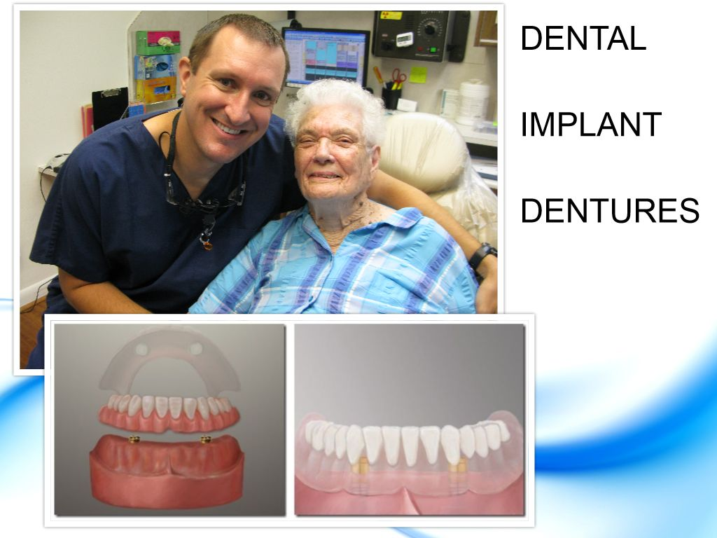 Deer Park Texas Implant Dentures