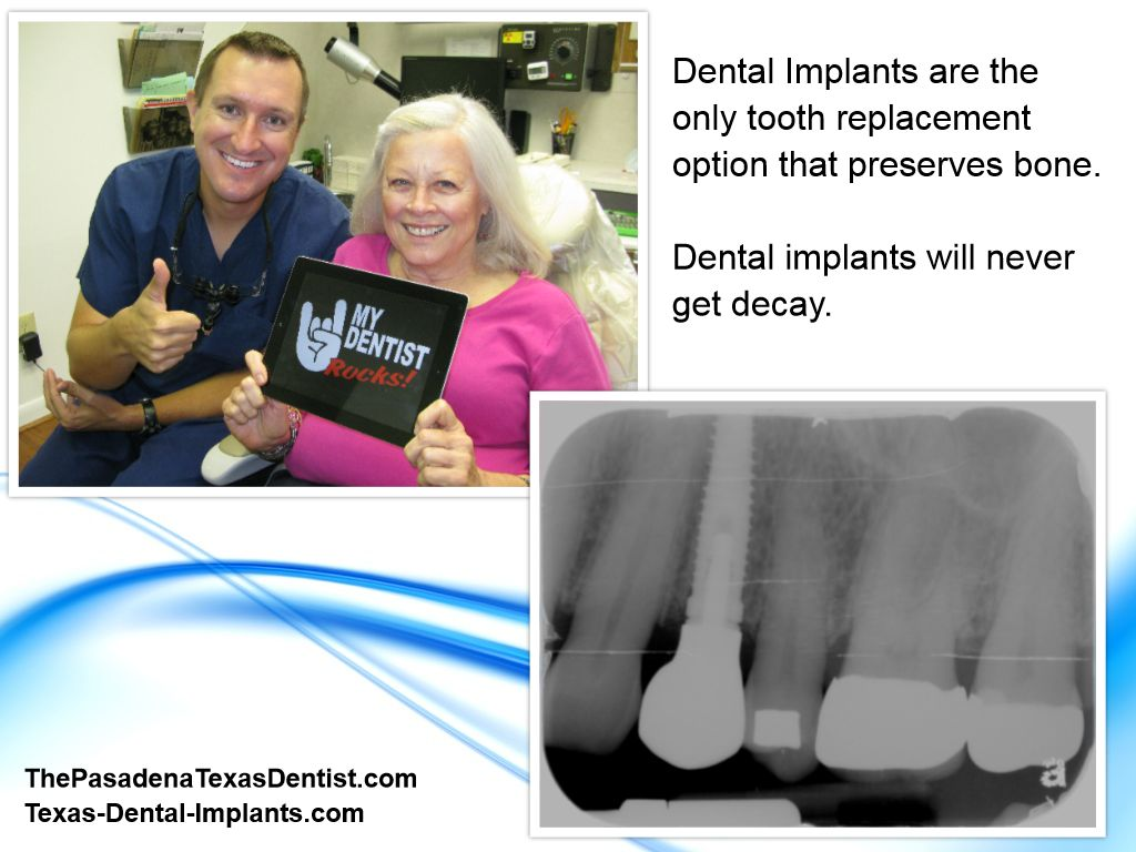 Dental Implants in 77504