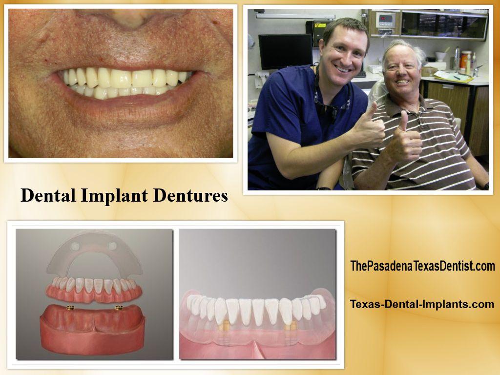 Dental Implant Denture Friendswood Texas