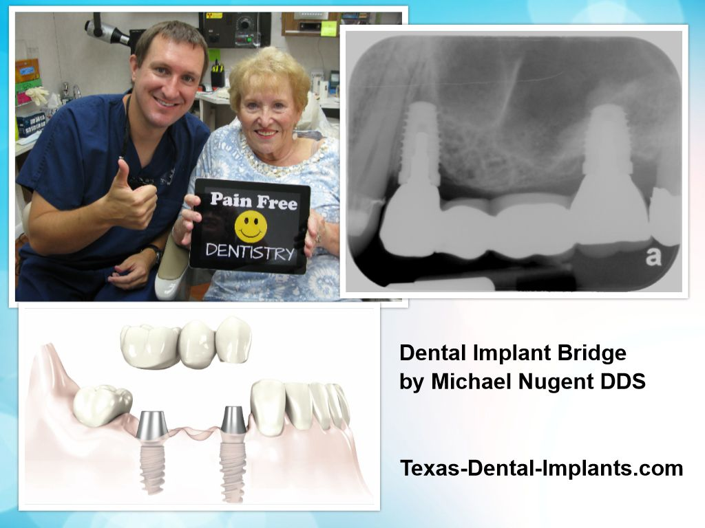 Dental Implant Bridge Friendswood Texas