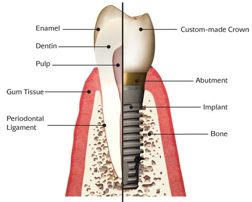 Dental Implant Pasadnena Texas