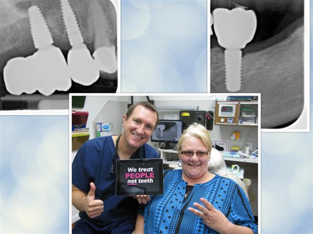 Implant Dentistry Pasadena Texas