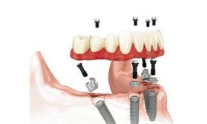 Pasadena Texas All on Four Dental Implants