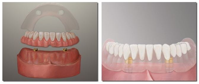 Dental Implant Dentures Pasadnea Texas