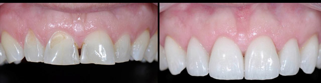 Cosmetic Dentistry Friendswood Texas