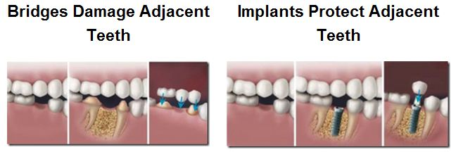 Dental Implants are better than a bridge.