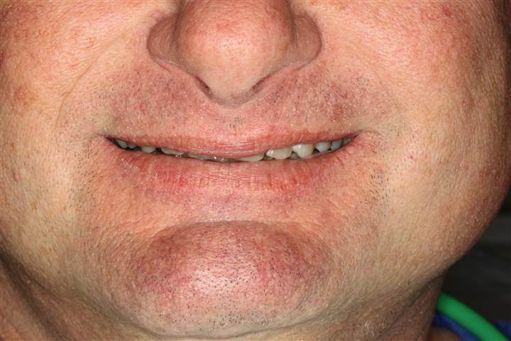 Smile Makeover Friendswood Texas
