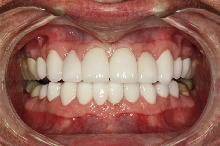 Best Dentist Friendswood Texas