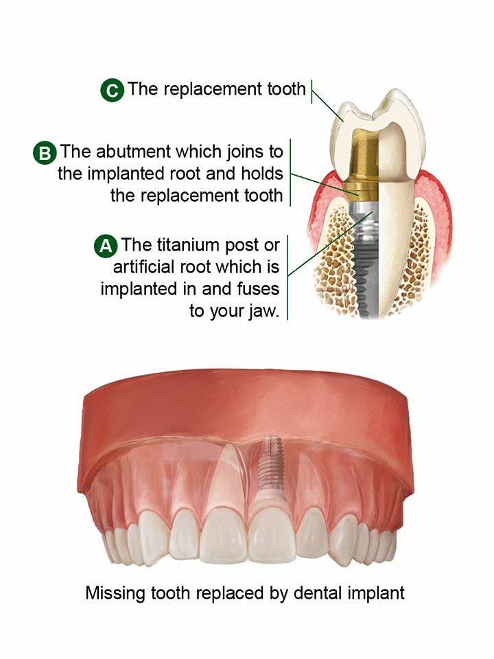 Dental Implants Pasadena Texas 77504