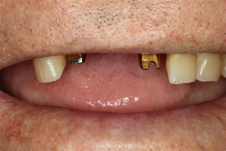 Dr Nugent Dental Implants