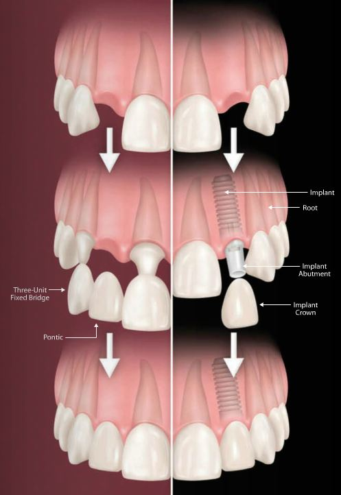 Dental Implant Bridge 77504