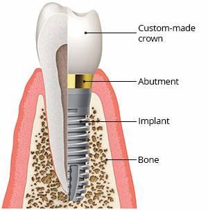 Dental Implants in Pasadena Texas