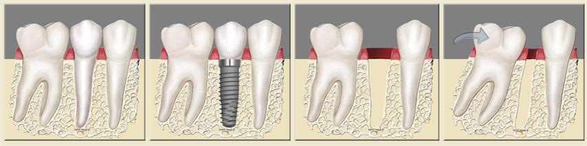 Dental Implants prevent teeth from shifting.