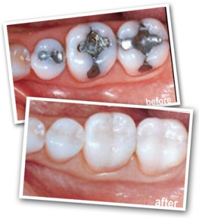 White Teeth Fillings Pasadena Texas